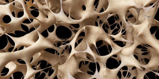 8راز سلامتی استخوان +9دلیل پوکی آن!